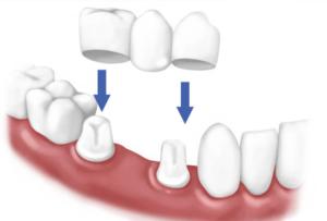 coroane-dentare2