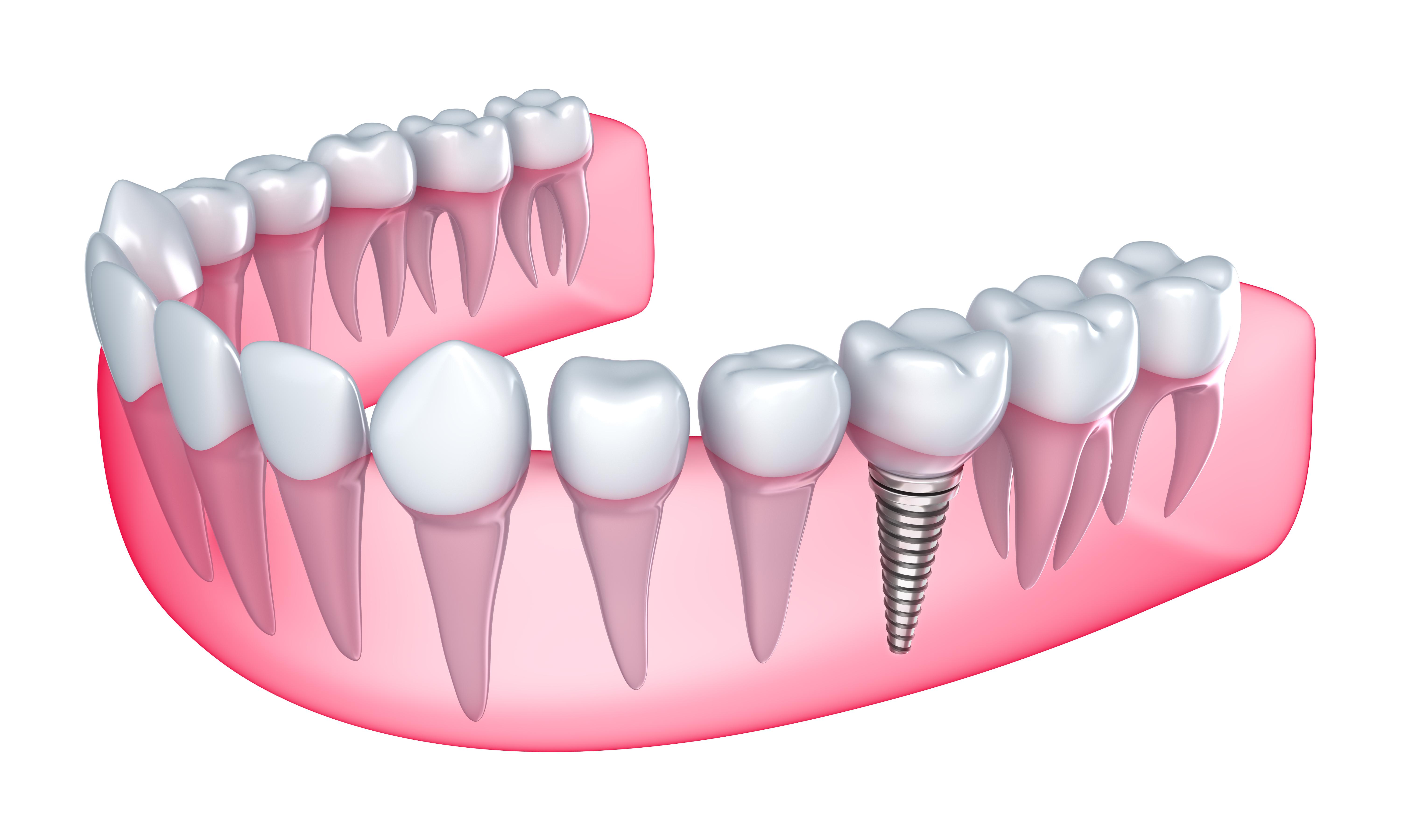 prothesiste dentaire orthodontie