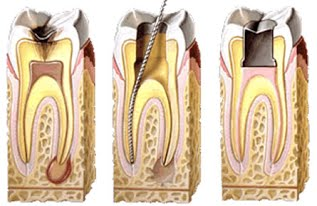endodoncia_dental