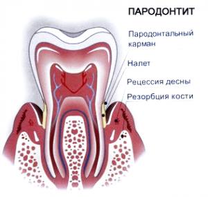 parodontit-300x285
