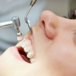 очистка полости рта