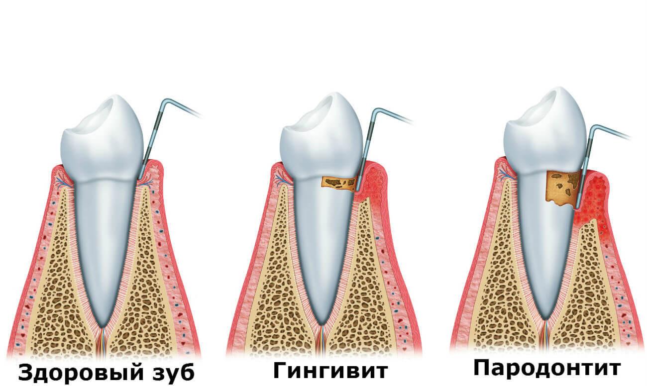 kak-le4it-parodontit1