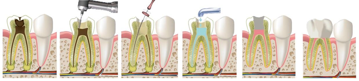 pulpit-lechenie-zuba-stomatologiya